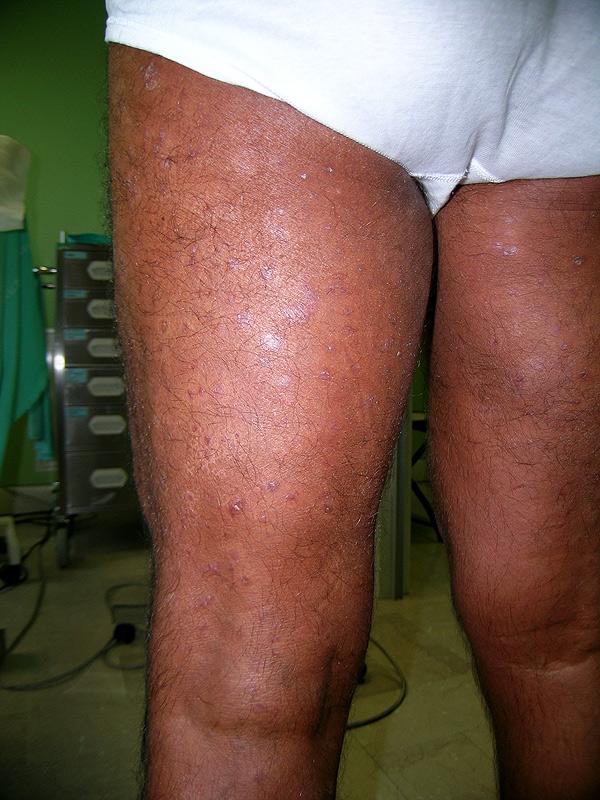 La cura di eczema passa farmaci